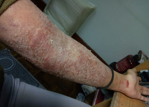 My Eczema and how it affected my mental health