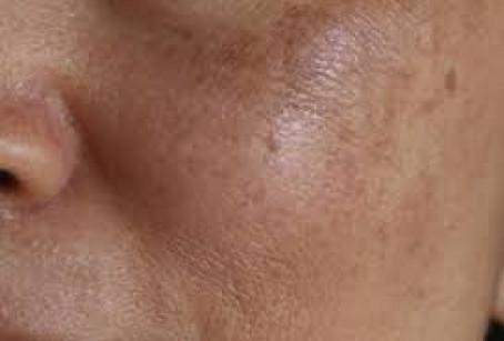 Melasma Hypigmentation