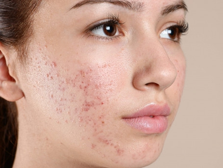 Types of Acne and Acne Treatments