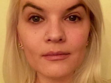 Bad Botox vs Good Botox