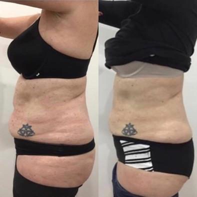 Platinum Face and Body Clinic, Fat Freezing/Cryolipolysis/Clatuu Alpha 360