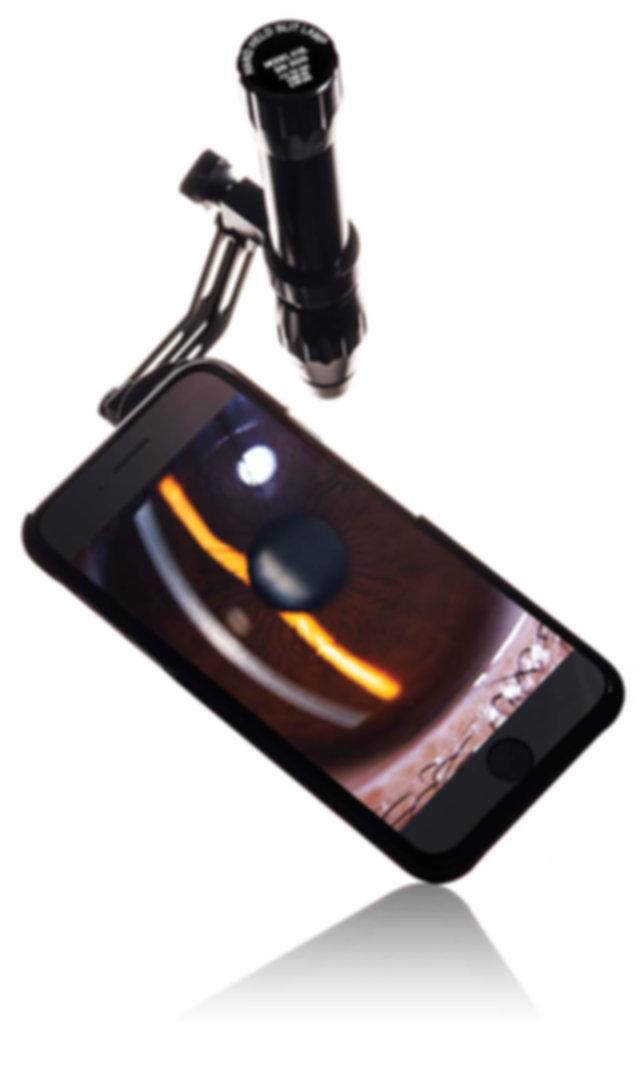 Eidolon Hand Held Slit Lamp Smartphone iPhone Adapter