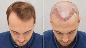 Hair-Transplant-in-Dubai-Abu-Dhabi.jpg