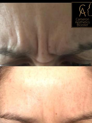 Upper Face Anti-wrinkle Glabellar Region