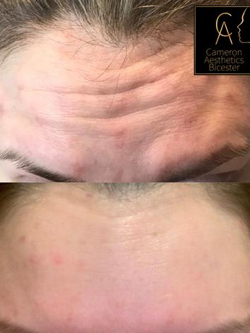 Upper Face Anti-wrinkle