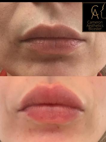 Dermal Lip Fillers