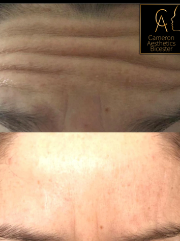 Upper Face Anti-wrinkle Frontalis