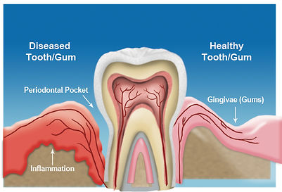 Dental claim pictures showing diseased tooth and gum showing gum disease and periodontal problems