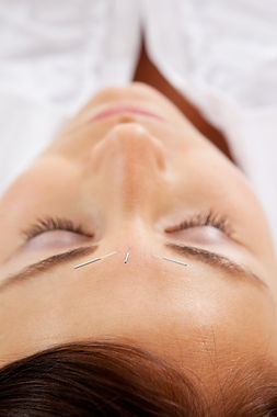 cosmetic acupuncture whitley bay tynemouth