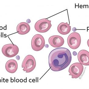 Piroplazmoza