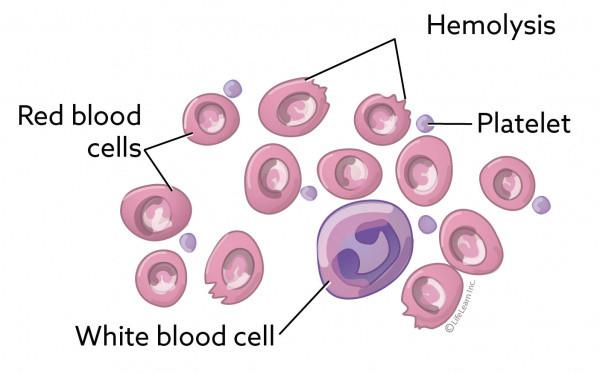 Piropazmoza napada crvena krvna zrnca