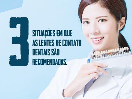 """Situações em que as """"lentes de contato dentais"""" são recomendadas."""
