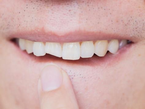 Por que estamos vendo mais dentes fraturados durante a pandemia?
