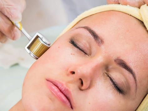 Microagulhamento - técnica que renova a pele e reduz manchas com agulhadas.