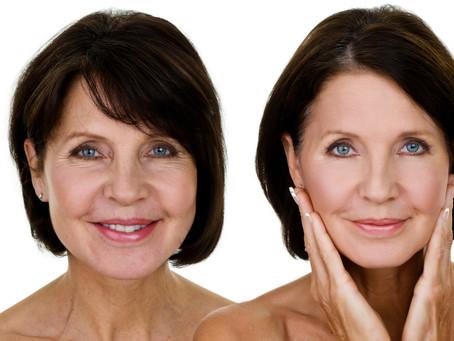 Em busca de rejuvenescimento, idosos buscam cirurgia plástica.