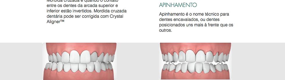 Pierre Cunha Ortodontia