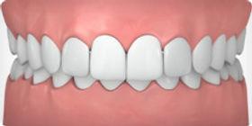 יישור שיניים שקוף קריסטל אלייגנר