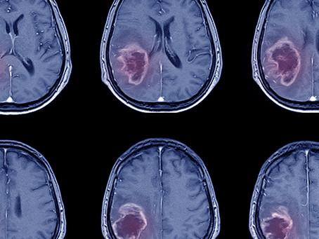 Estudo identifica neuropeptídeo eficaz para uso precoce no AVC
