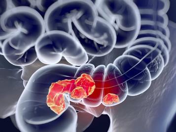 Estudo aproxima ainda mais consumo de carne vermelha e risco de câncer colorretal