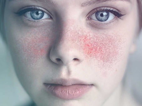 Imunoterapia CAR T pode combater eficazmente lupus refratário ao tratamento