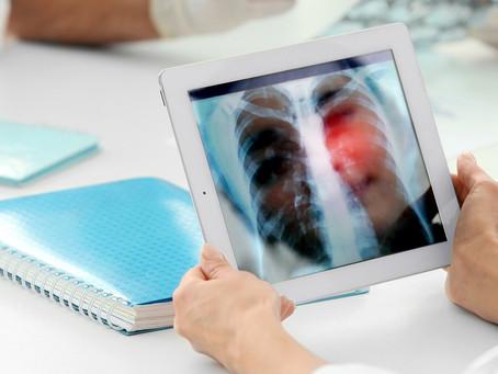 Nova estratégia consegue elevar resposta do câncer de pulmão à imunoterapia