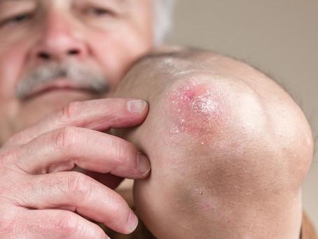 Estudo de desenvolvimento identifica vias ligadas às doenças inflamatórias da pele