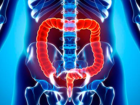 Estudo em humanos correlaciona microbioma, inflamação e câncer de cólon