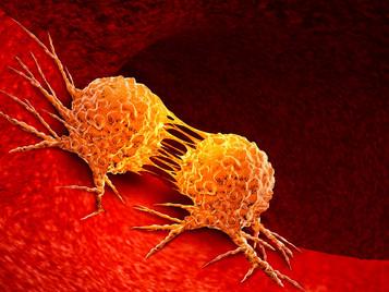 Estudo caracteriza subpopulações de células responsáveis pela recorrência do câncer