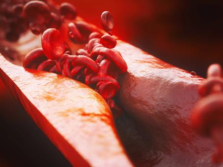 Edição de bases é promissora alternativa no tratamento da anemia falciforme