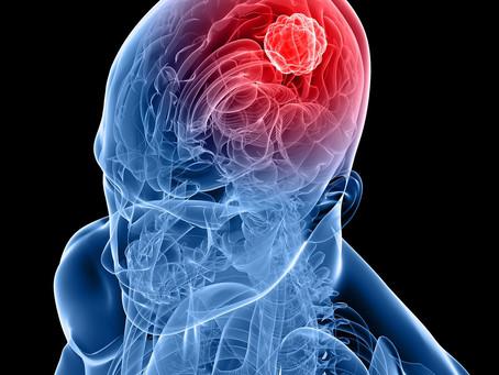 Estudo projeta nova estratégia no tratamento do glioblastoma