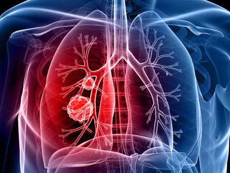 Terapia direcionada ao hospedeiro pode melhorar tratamento da tuberculose