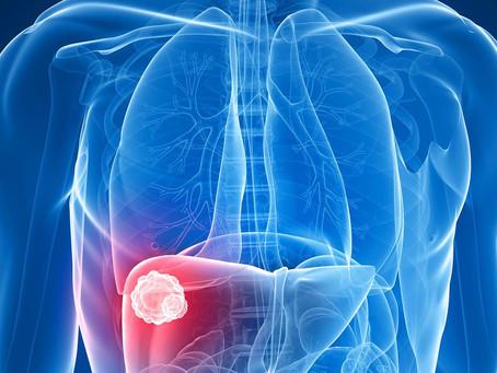 Nova modalidade de imunoterapia contra hepatite B tem múltipla ação sobre a doença