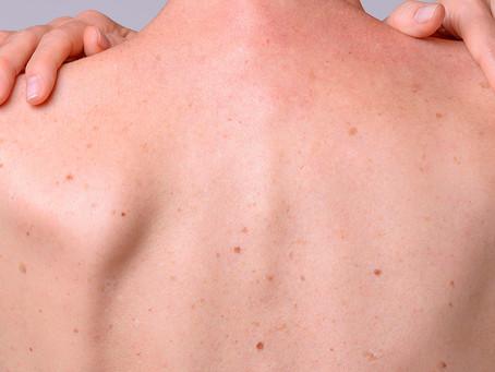 Antibióticos como potencial tratamento para o melanoma