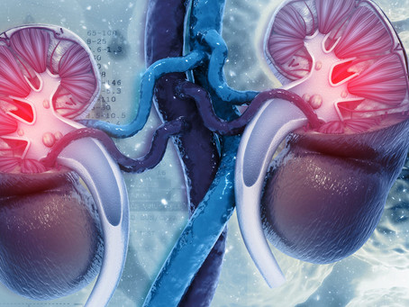 Estudo identifica potencial marcador de recorrência do câncer renal