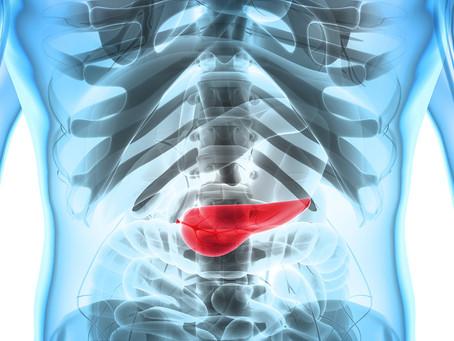 Nova via de evasão imune do câncer de pâncreas identificada pode melhorar resultados