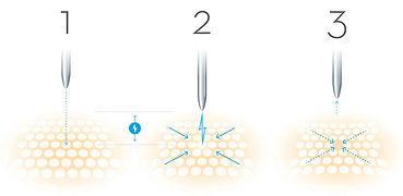 PB-FIBROBLAST-Plasmareaktion-01.jpg