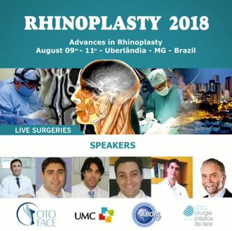 Rhinoplasty 2018