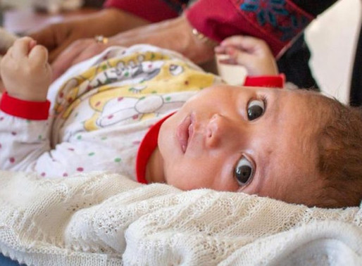 Mortalidade infantil tem redução histórica no Brasil