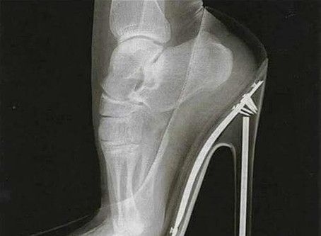 Wearing high heels can negatively affect a woman's orgasm