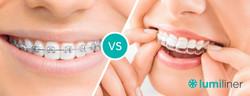 liner_braces
