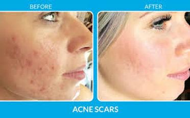 acne b and a.jpg