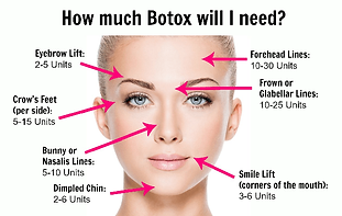 how-much-botox-will-i-need.png