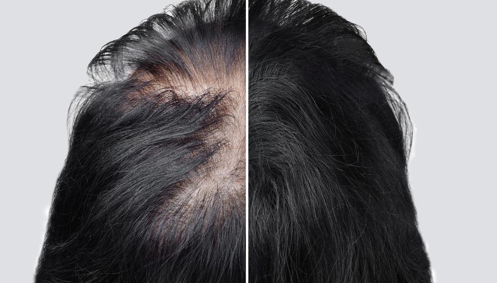 Women baldness alopecia. Hair after usin