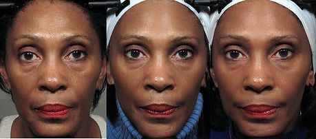 face-exercises-articleLarge-v2.jpg