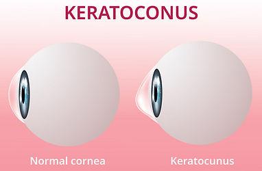 keratoconus_edited.jpg