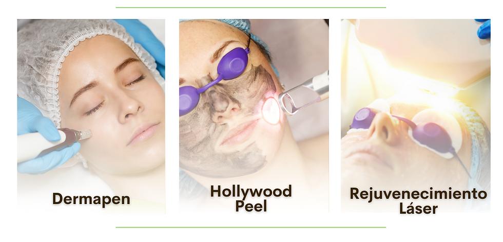 dermapen, hollywood peel, peeling, rejuvenecimiento, antiarrugas, arrugas, antiedad
