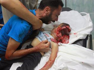 """Mais crianças do que soldados foram mortos desde o início da operação militar israelense """"Marge"""