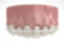 Inman Aligner can straighten 4 upper teeth