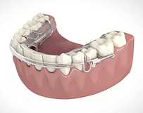Inman Aligner can straighten 4 lower teeth