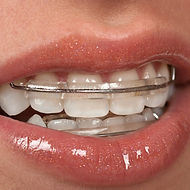 Inman Aligners - teeth straightening aligner that is perfect for straightening 4 front teeth in a short period of time